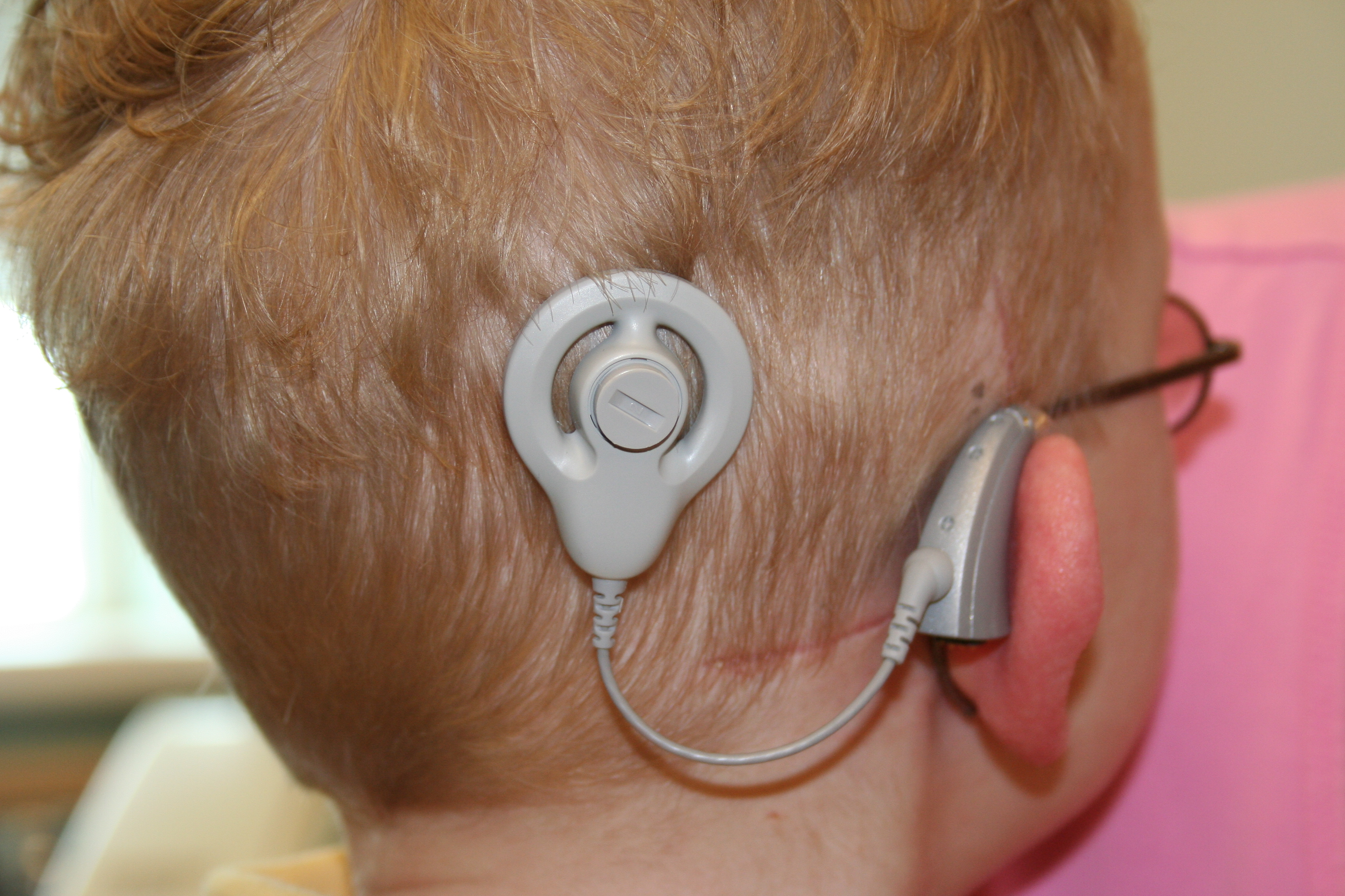 cochlear implants What is a cochlear implant cochlear implants are small, electronic devices used to correct hearing loss in those that are completely deaf or severely hard-of-hearing.