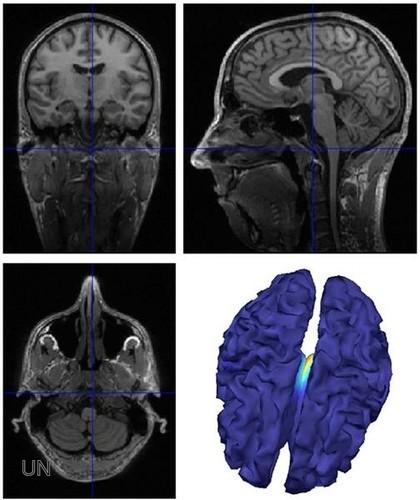 Cientificos Argentinos identifican un mecanismo que causa la epilepsia y la resistencia a la medicación